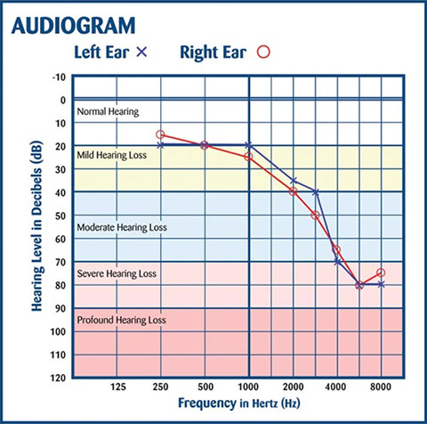 Example Audiogram